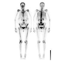 Skelett/Knochen